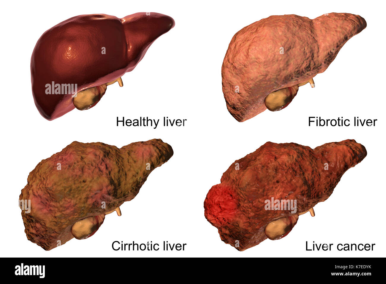 Human liver showing stages of liver disease, computer ...
