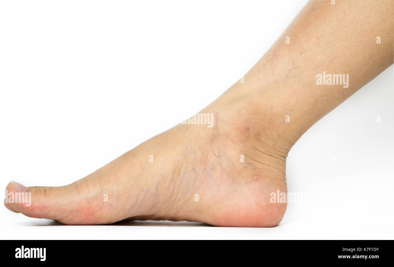 Closeup cracked heels and varicose veins on Asian woman leg and ankle isolated on white background with copy space. The problem from wearing high heel - Stock Image