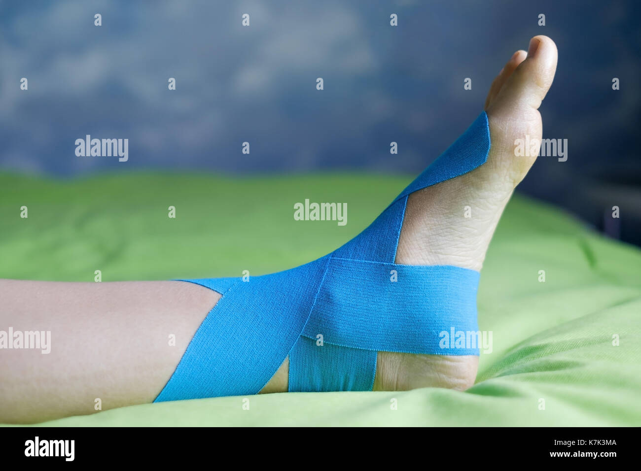 Elastic therapeutic blue tape applied to patient's left leg. - Stock Image