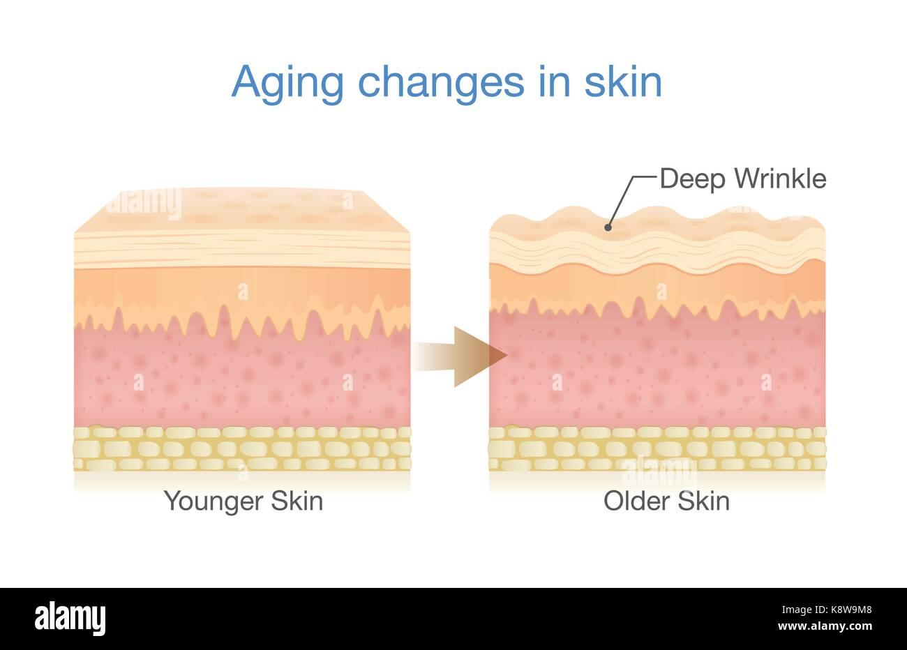 Aging Changes in Skin - Stock Vector