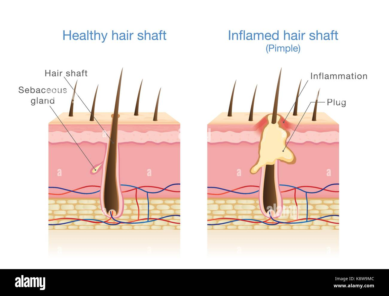 Infection in the hair follicles. - Stock Vector
