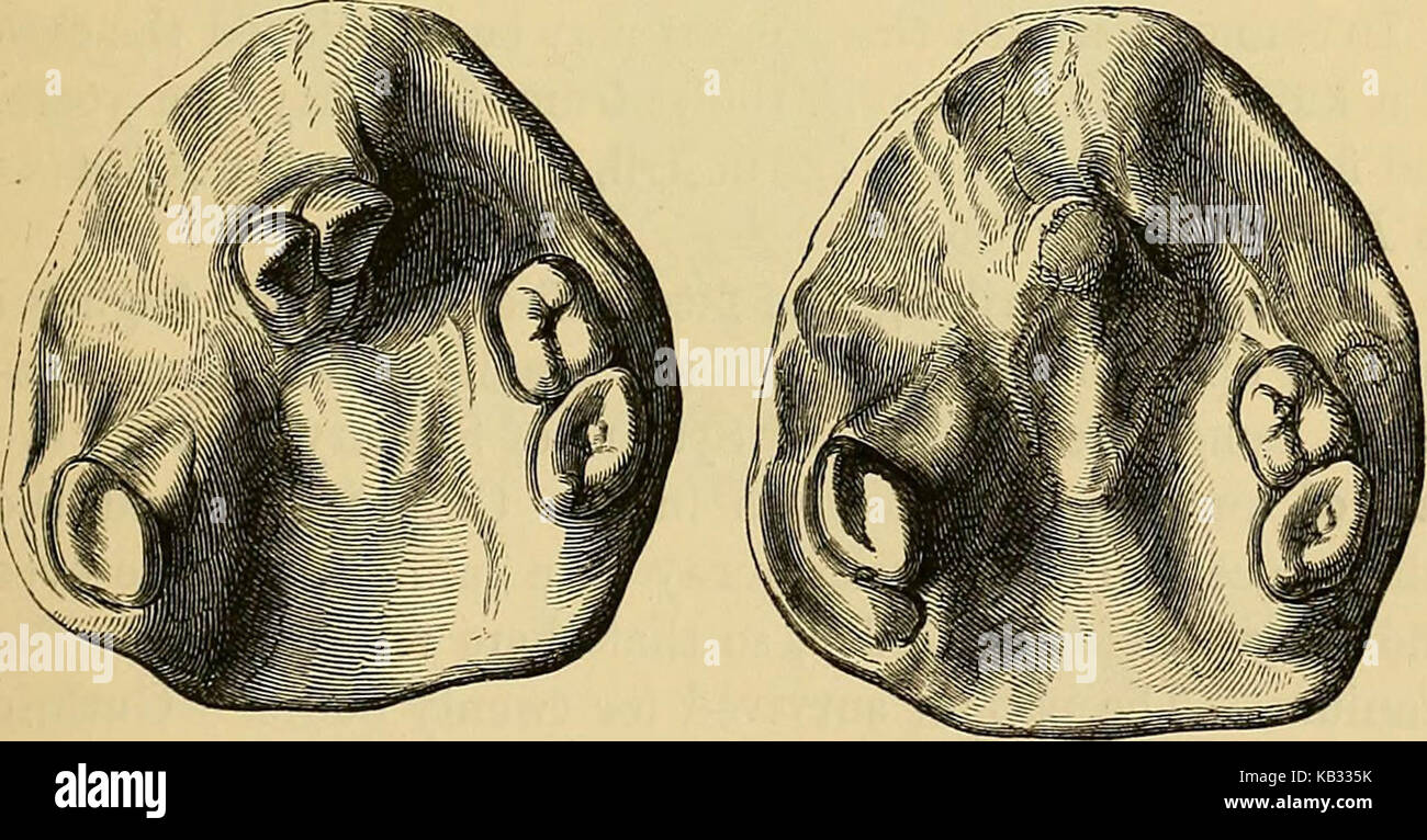 'Injuries and diseases of the jaws : the Jacksonian prize essay of the Royal College of Surgeons of England, - Stock Image