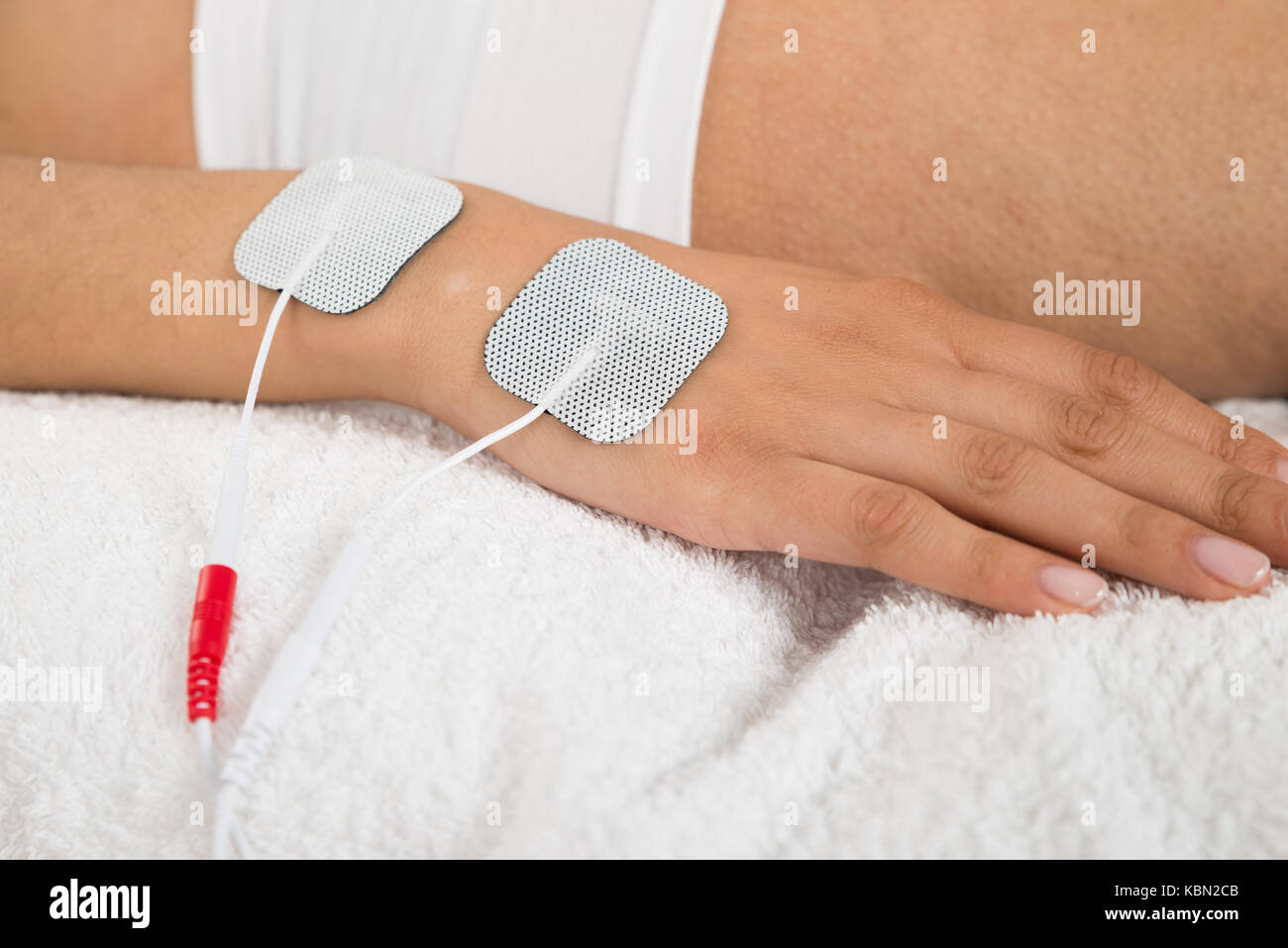 Close-up Of A Woman With Electrodes On Her Hand - Stock Image
