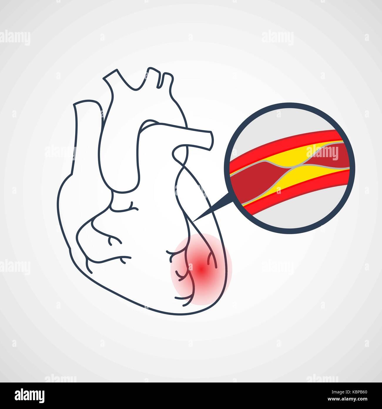 Coronary Artery Disease vector icon illustration - Stock Image