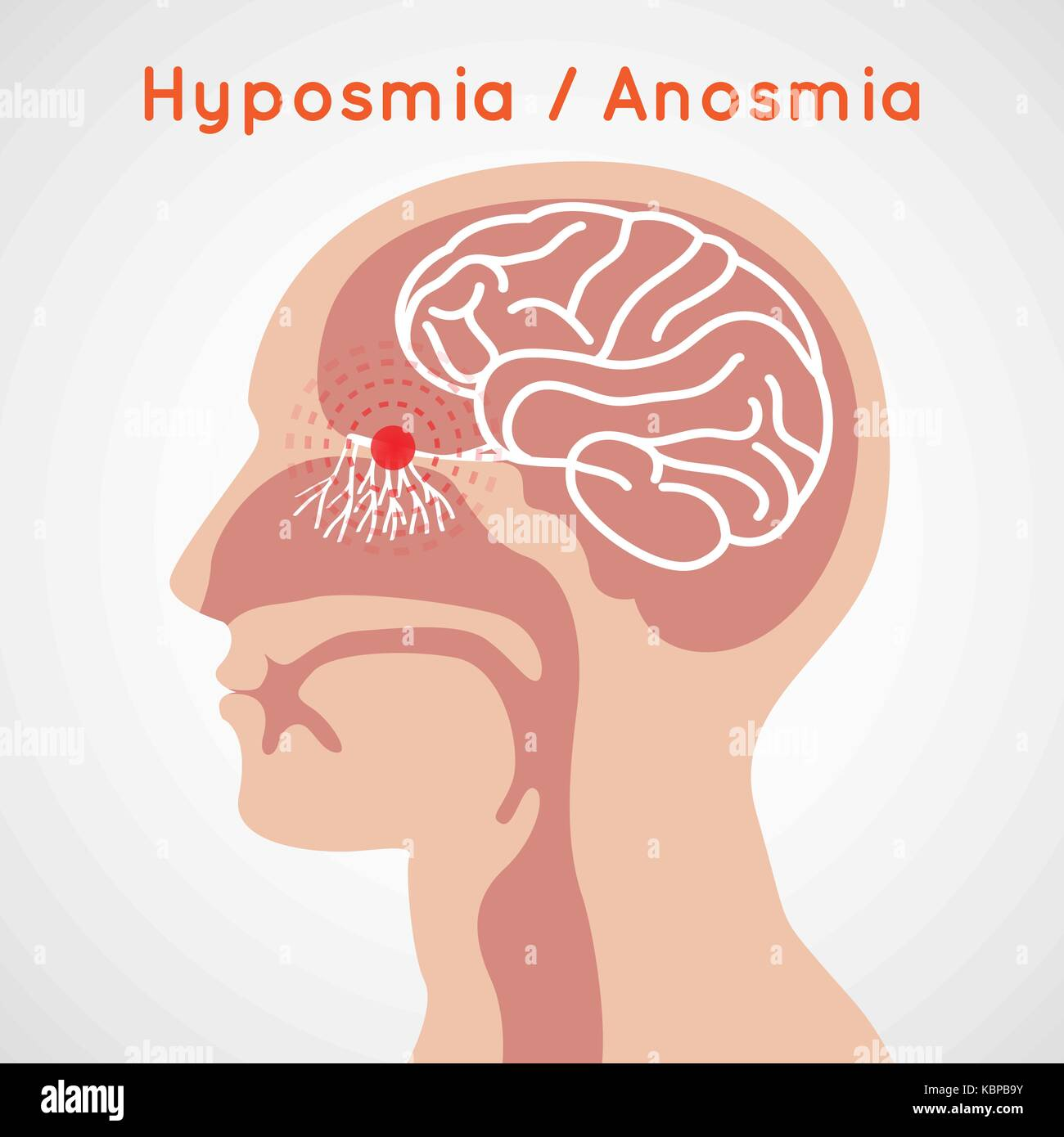 Hyposmia and Anosmia logo vector icon design illustration - Stock Image
