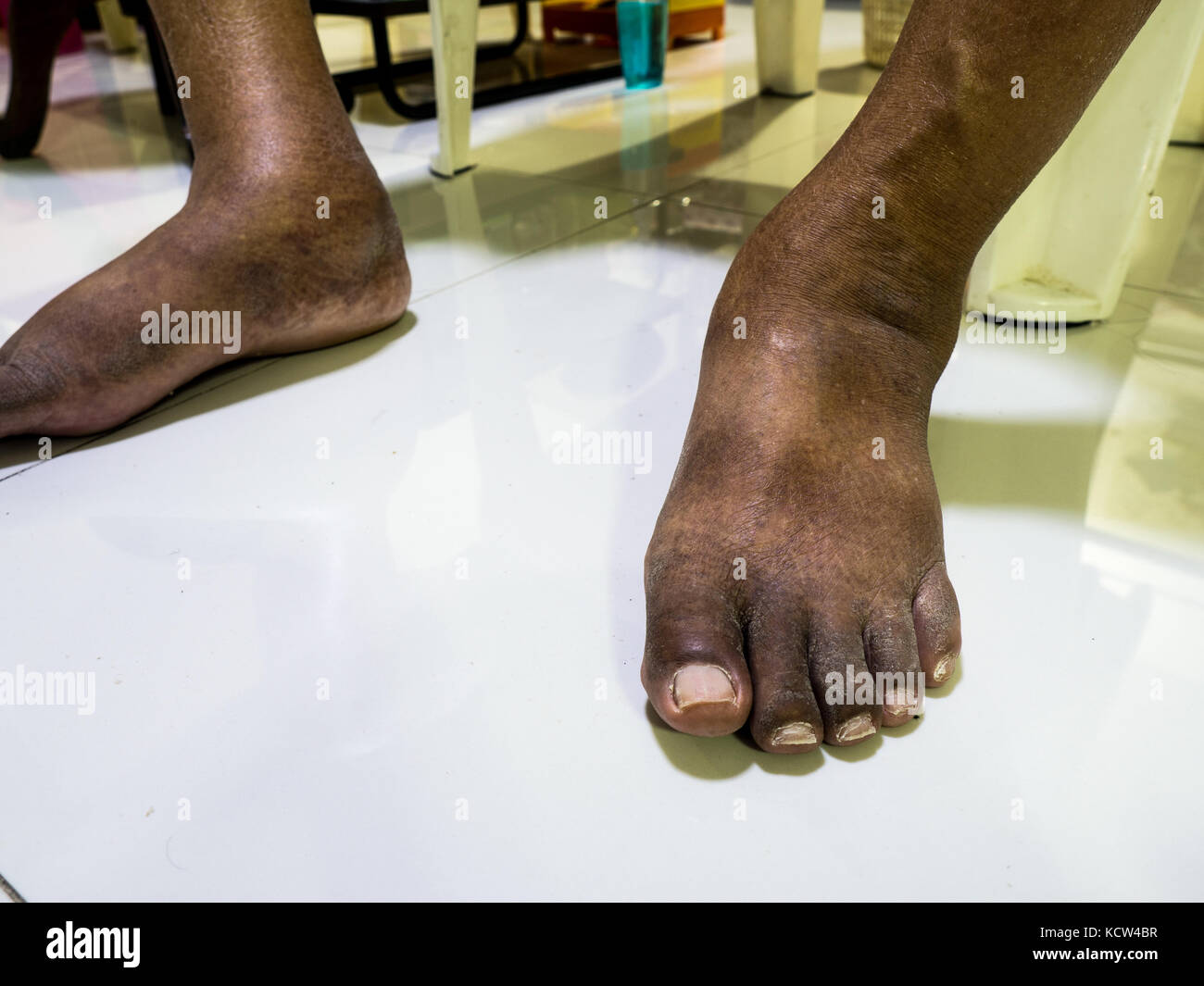 The feet of people with diabetes, dull and swollen. Due to the toxicity of diabetes. - Stock Image