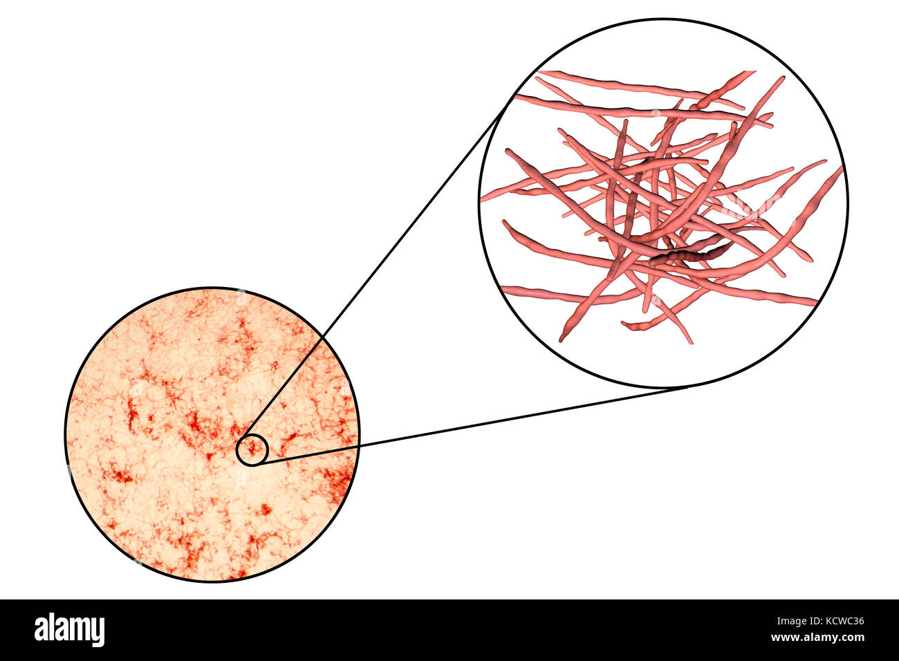 Actinomycete bacteria, micrograph and computer illustration. These filamentous Gram positive bacteria form a fungus - Stock Image