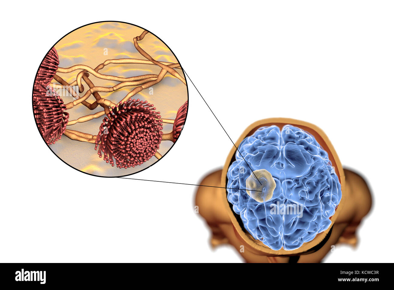Aspergilloma of the brain and close-up view of Aspergillus fungi, computer illustration. Also known as mycetoma, - Stock Image