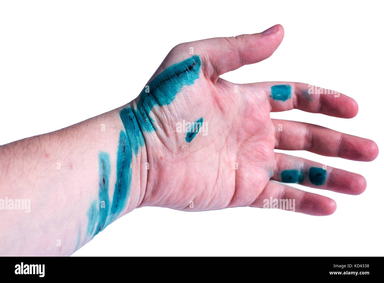 scratched hand treated with antiseptic - Stock Image