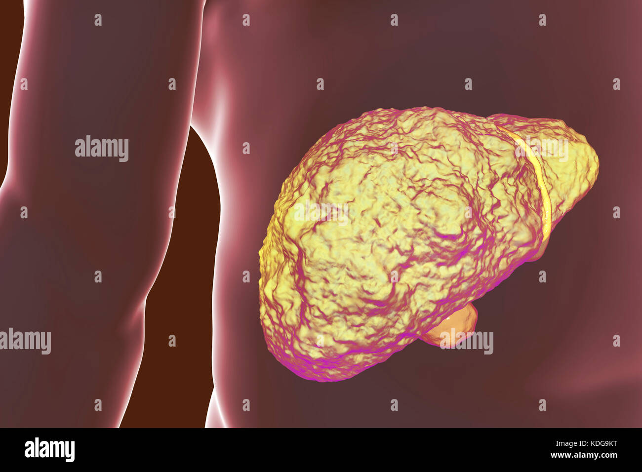 Liver with cirrhosis, computer illustration. Cirrhosis is a consequence of chronic liver disease characterized by Stock Photo