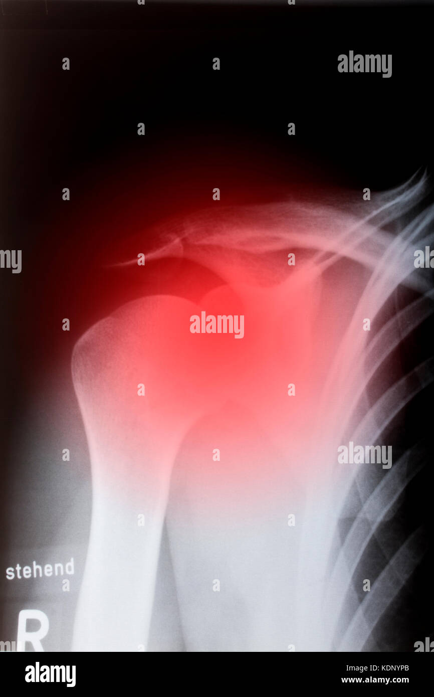 Human shoulder in x-ray - Stock Image