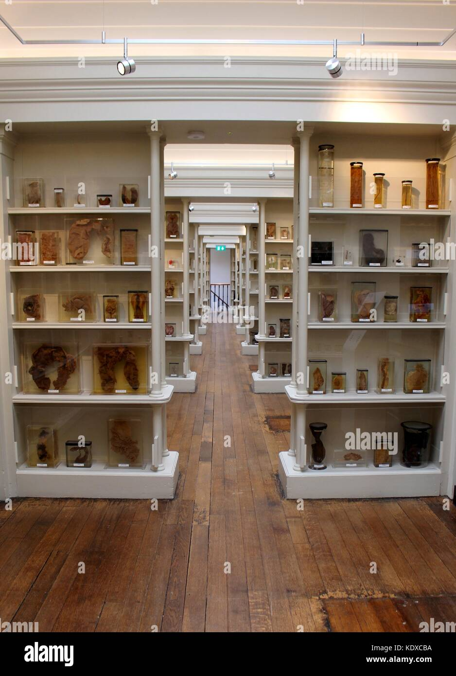 The Wohl Pathology Museum is home to one of the largest collections of pathological anatomy in the world. - Stock Image