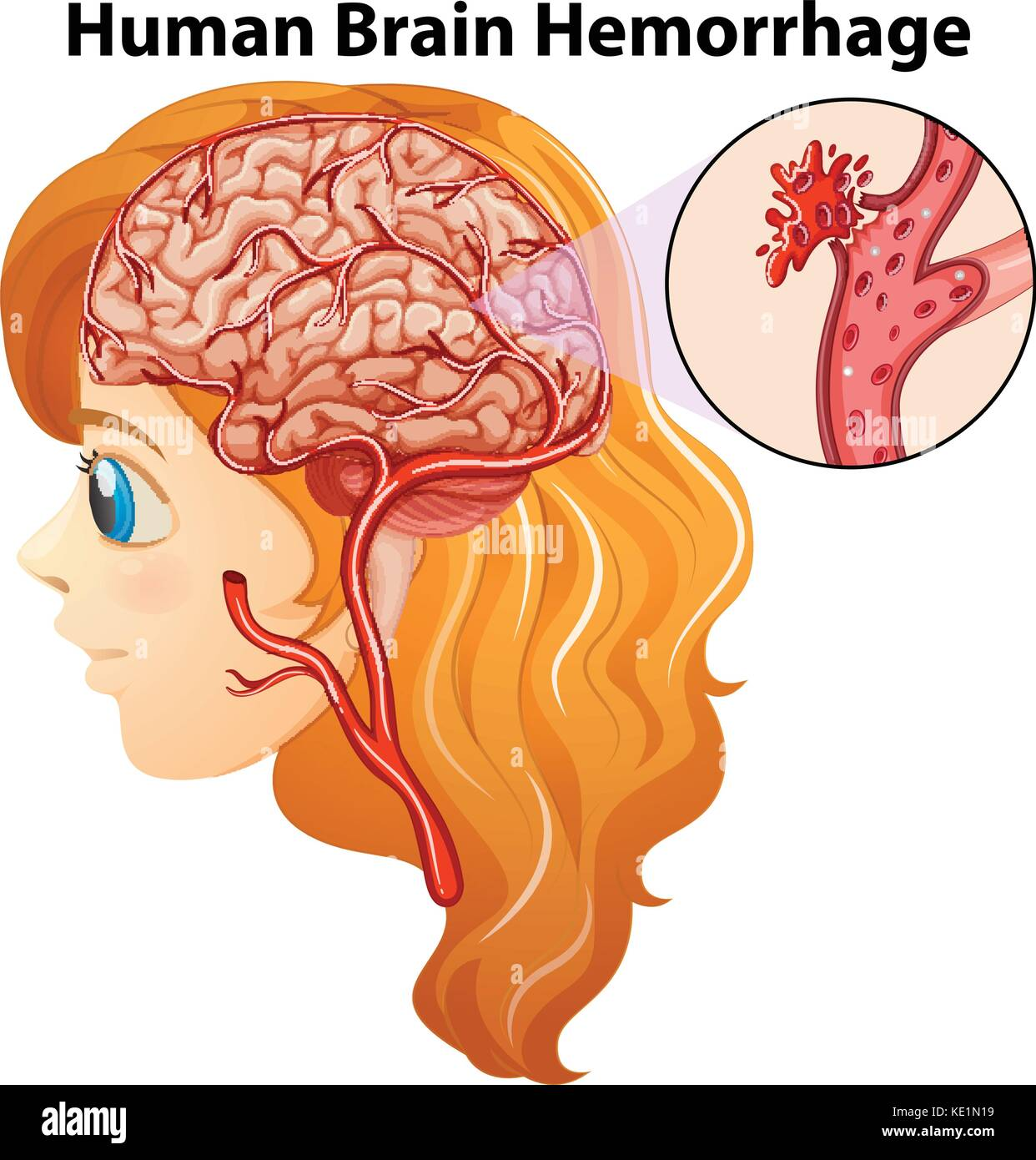 Diagram showing human brain hemorrhage illustration stock vector art diagram showing human brain hemorrhage illustration ccuart Choice Image