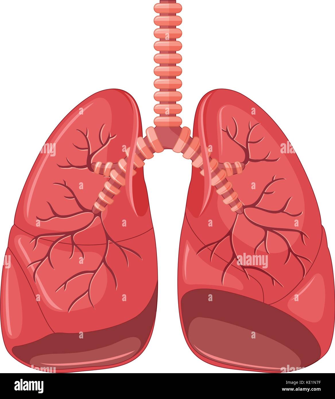 Lung diagram of pneumonia illustration - Stock Image
