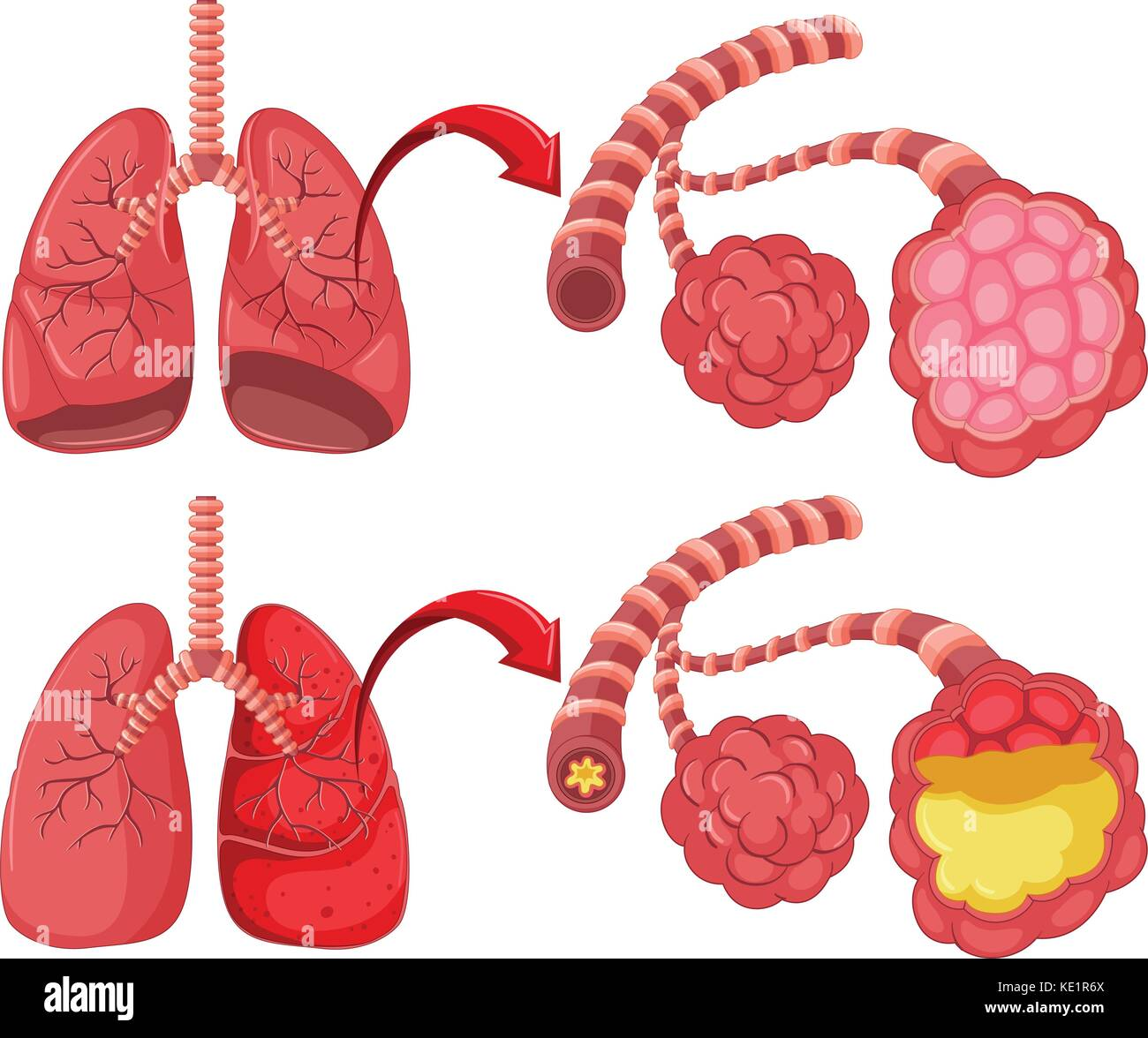 Human lungs with pneumonia illustration - Stock Image