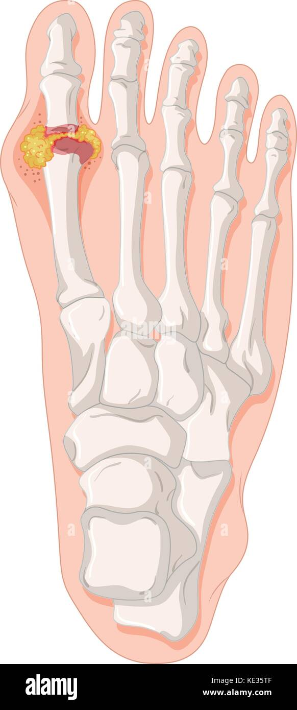 Gout Toe Anatomy Diagram - Complete Wiring Diagrams •