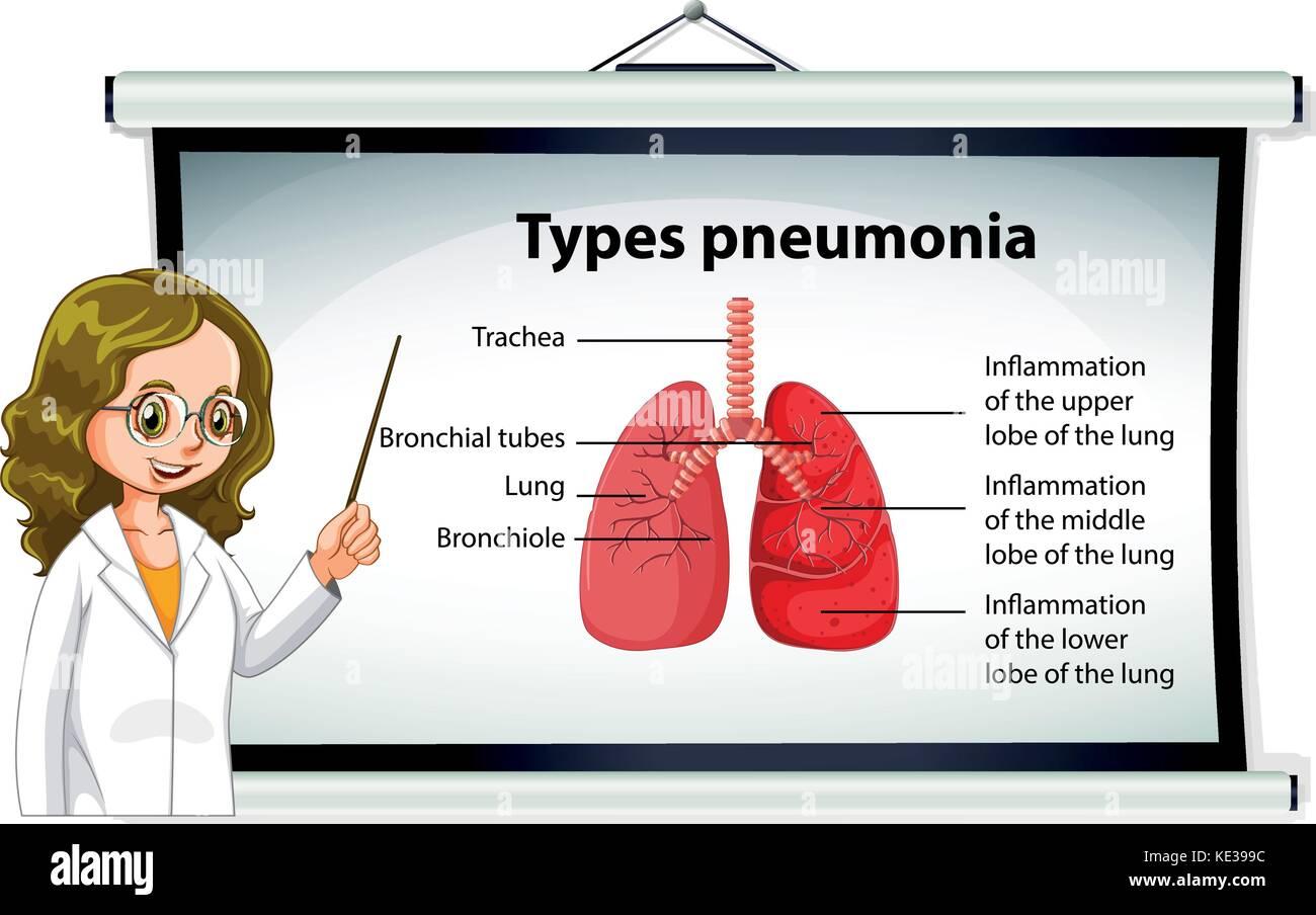 Doctor explaining types of pneumonia illustration - Stock Vector
