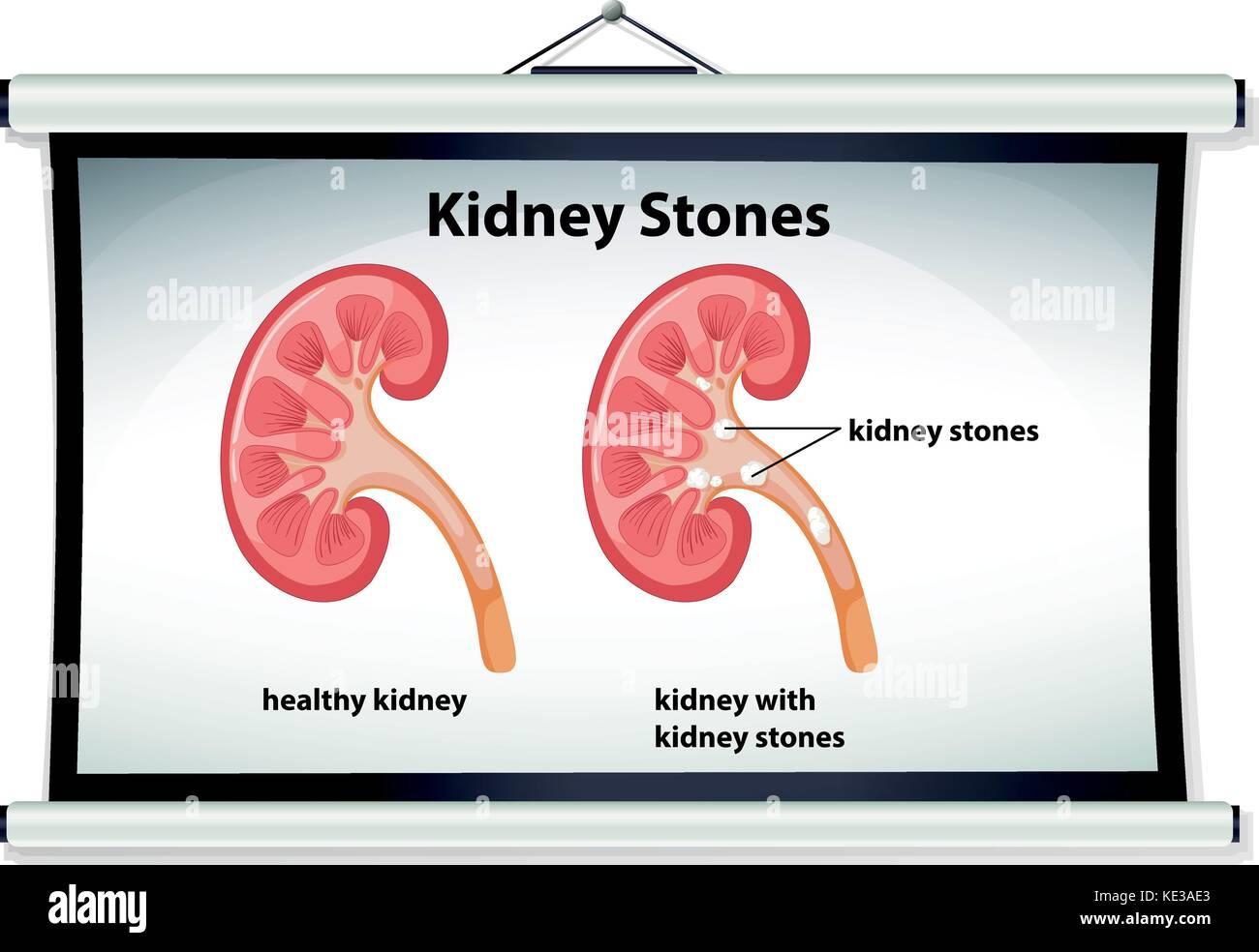 Kidney Stone Human Stock Photos & Kidney Stone Human Stock Images ...