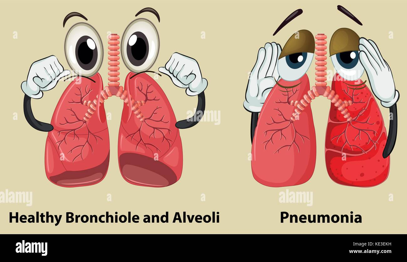 Diagram showing healthy and pneumonia lungs illustration - Stock Image