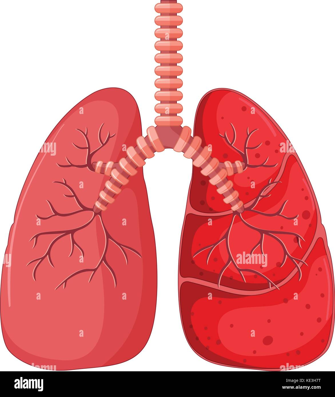 Lung diagram with pneumonia illustration - Stock Image
