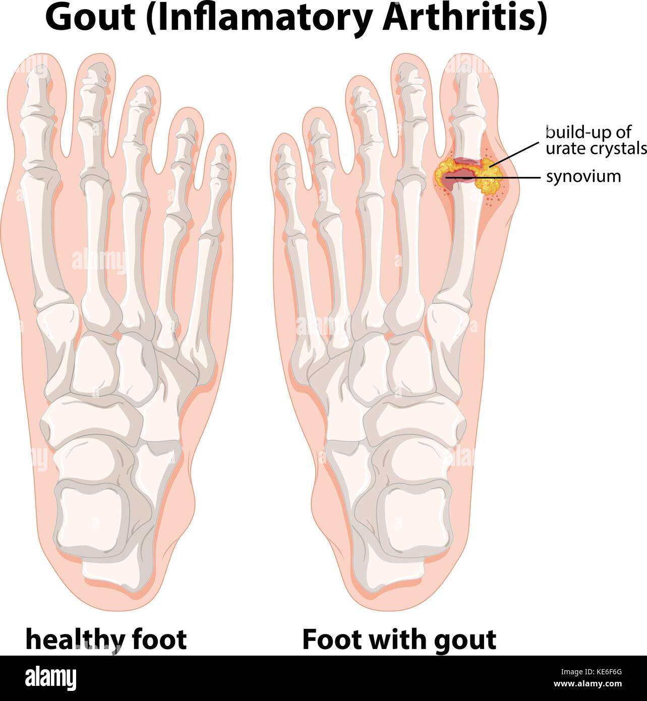 Gout In Foot Diagram With The Bones Of The Block And Schematic
