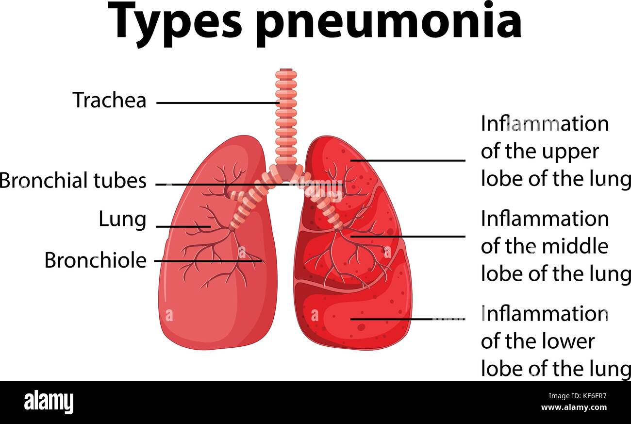 Diagram showing types pneumonia illustration - Stock Vector