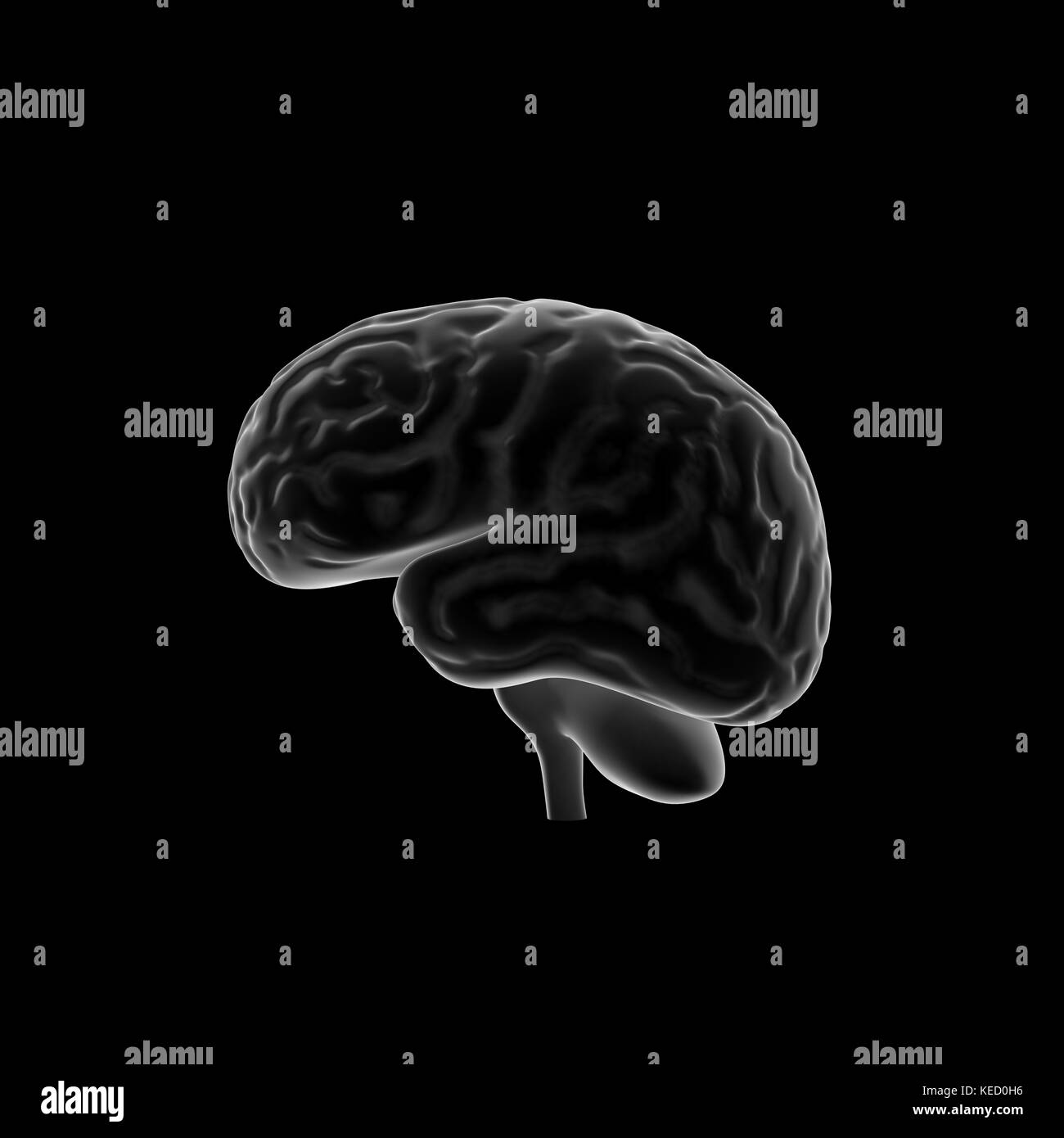 Brain Scan Black and White Stock Photos & Images - Alamy