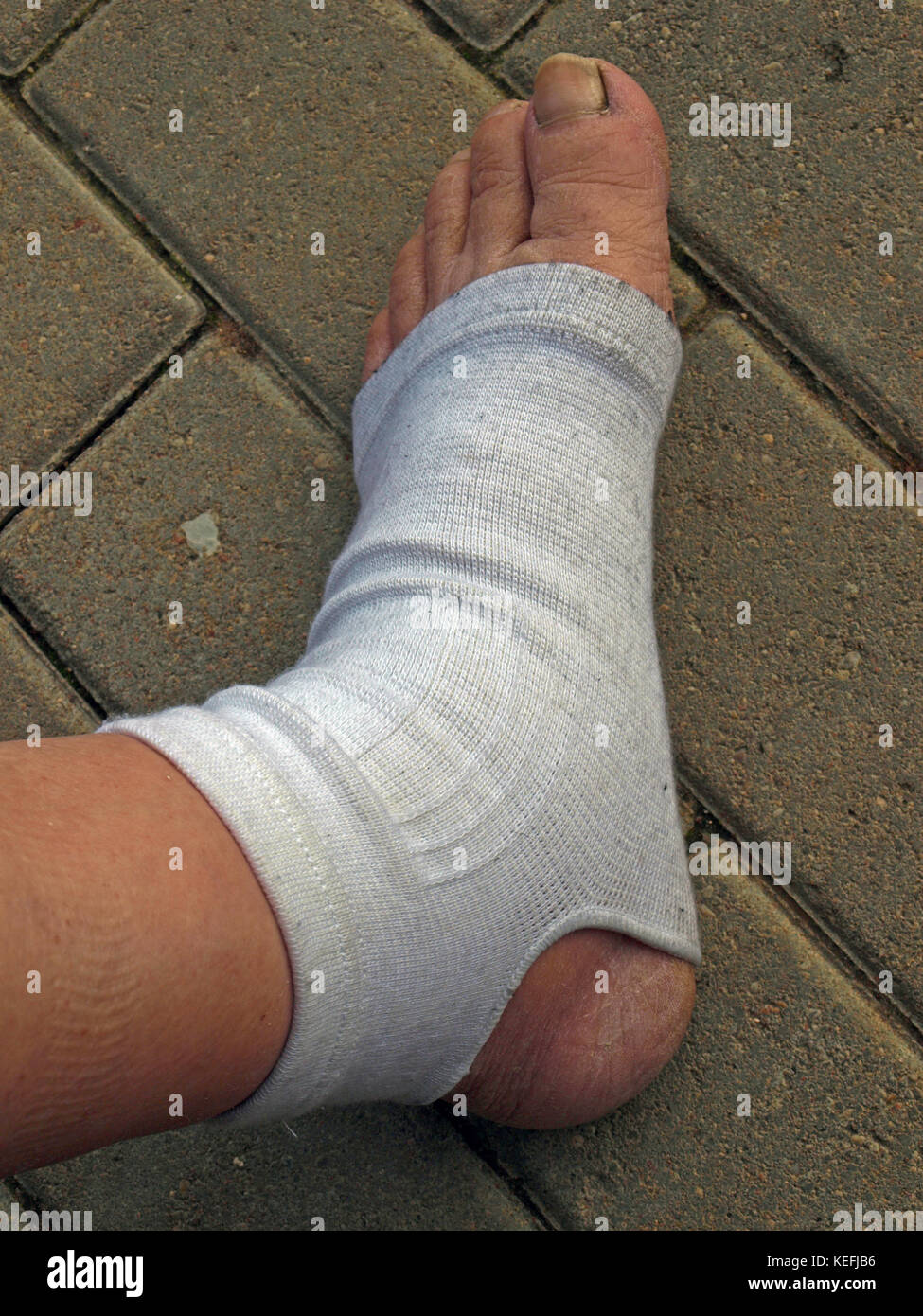 Leg with the orthosis for foot and ankle - Stock Image