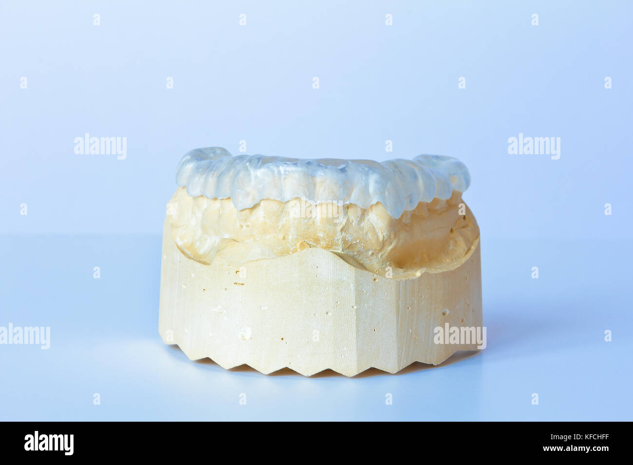 Grind guard made out of clear plastic on a custom-made tooth model, used against excessive wear caused by bruxism Stock Photo