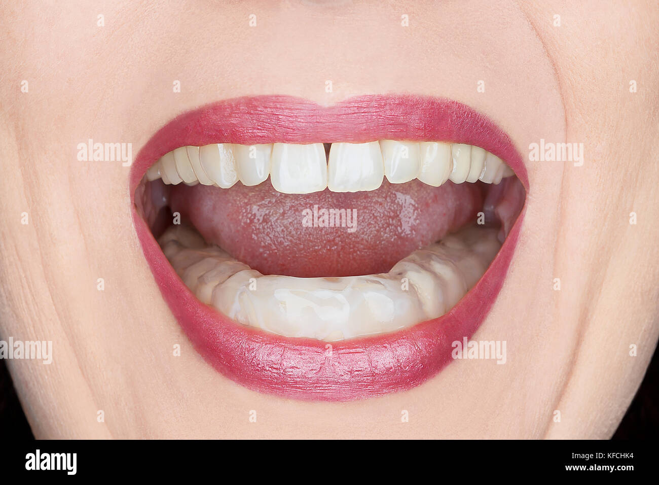 Closeup of an open woman's mouth with plastic teeth guard to stop wear due to grinding at night, caused by excessive Stock Photo