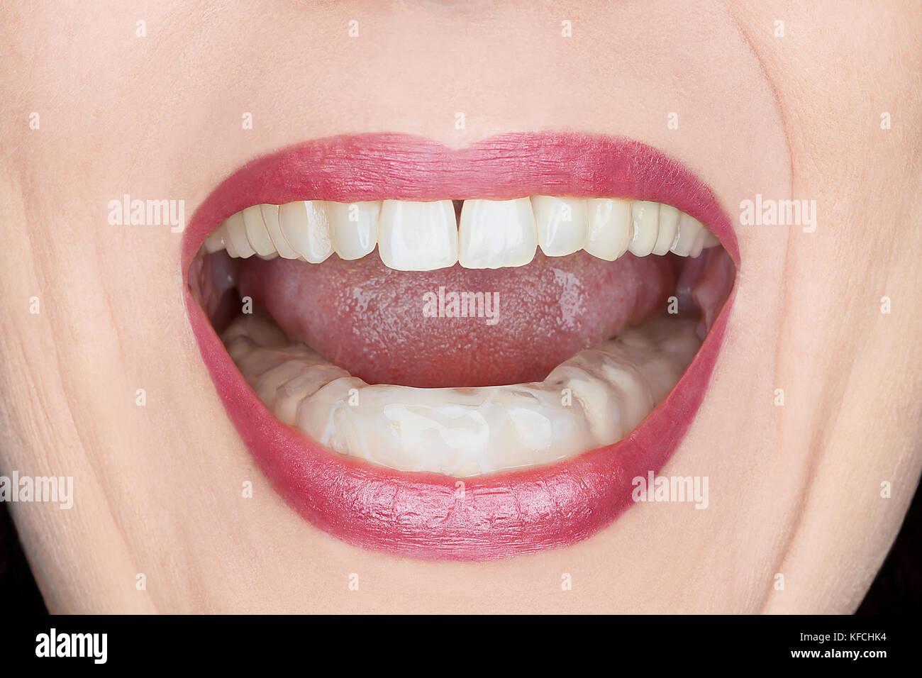 Teeth Grinding Stock Photos Teeth Grinding Stock Images Alamy