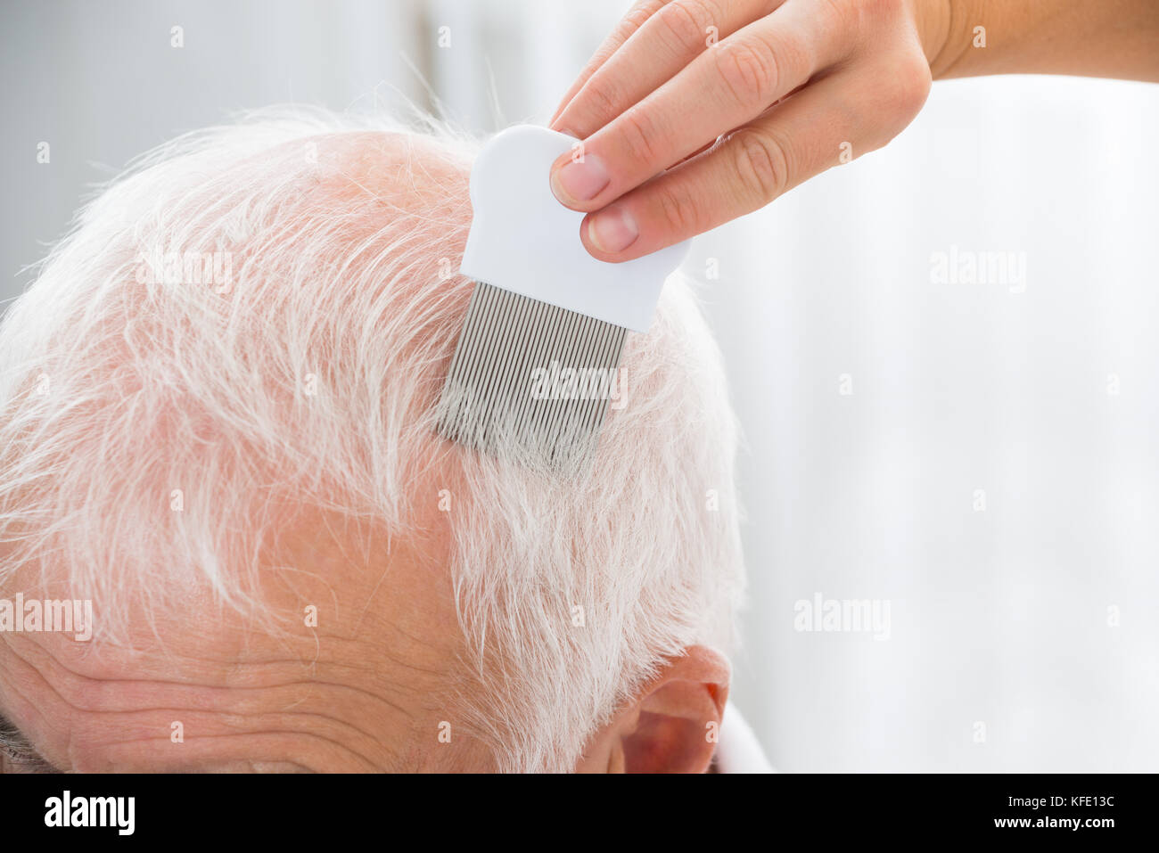 Close-up Of Doctor Doing Treatment On Senior Patient's Hair With Comb Stock Photo