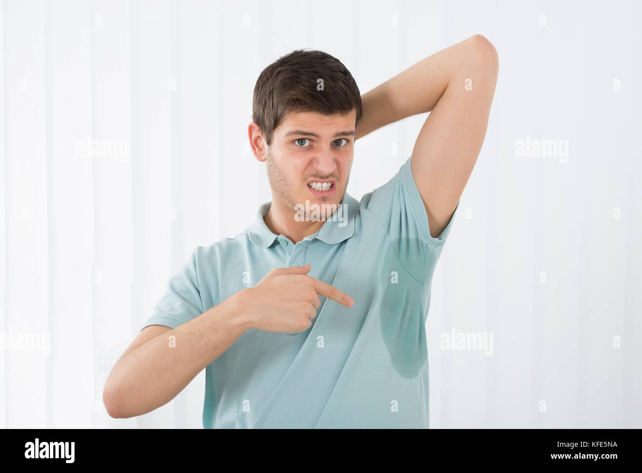 Young Man With Hyperhidrosis Pointing To A Sweat Armpit - Stock Image