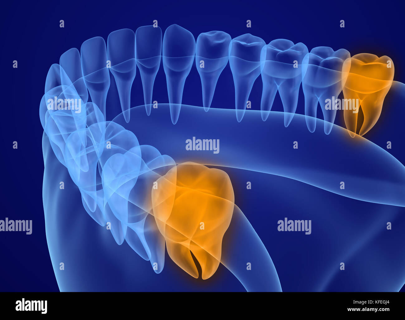Wisdom tooth xray view. Medically accurate tooth 3D illustration - Stock Image