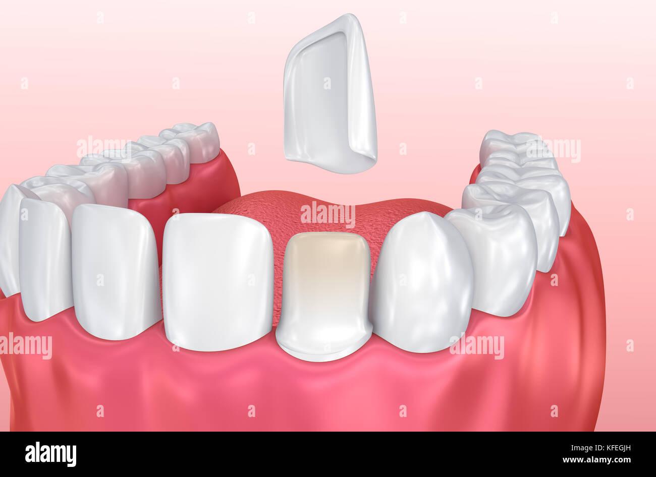 Dental Veneers: Porcelain Veneer installation Procedure. 3D illustration - Stock Image