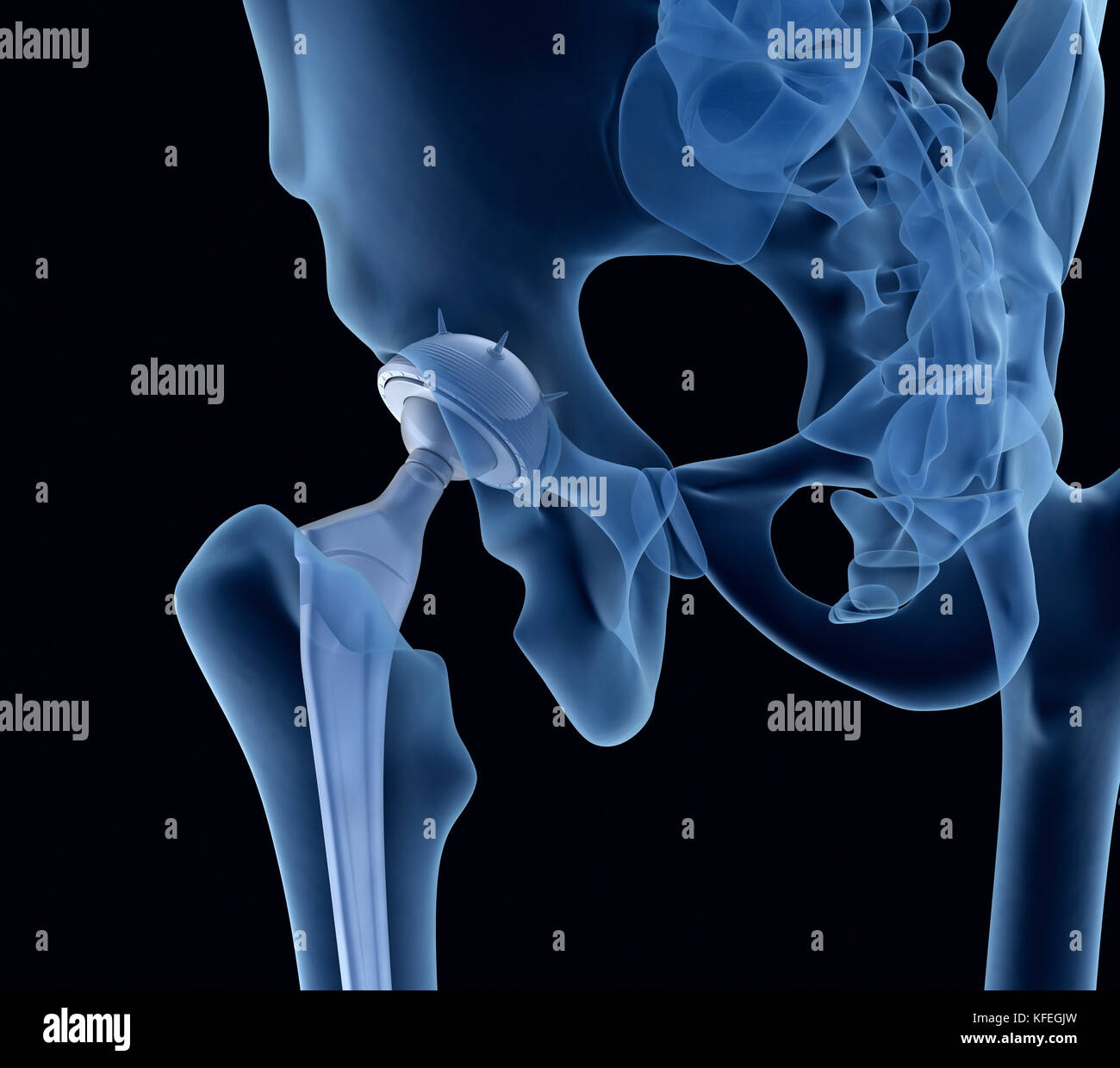 Hip replacement implant installed in the pelvis bone. X-ray view. Medically accurate 3D illustration - Stock Image