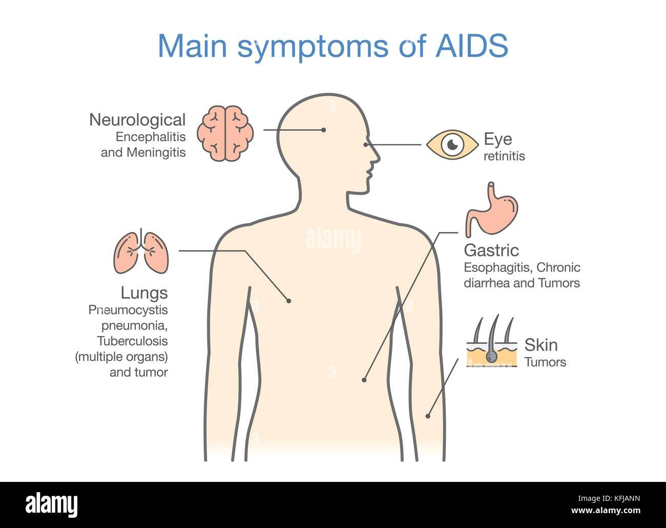 Diagram of Main symptoms of AIDS. - Stock Vector