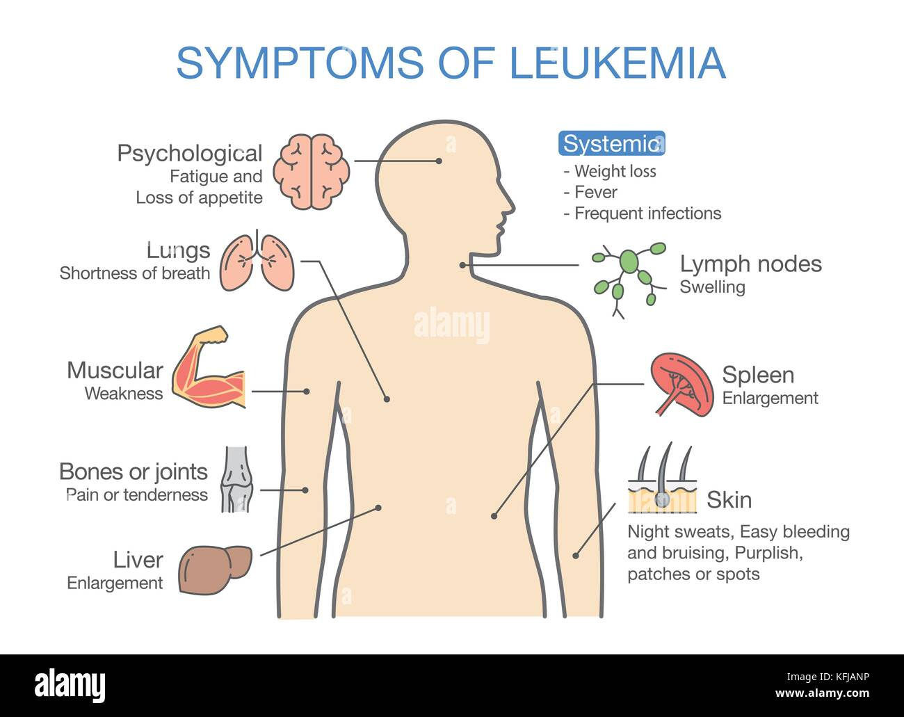 Common symptoms and signs of Leukemia. - Stock Image