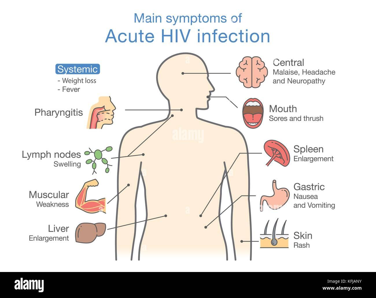 Main symptom of Acute HIV infection. - Stock Image