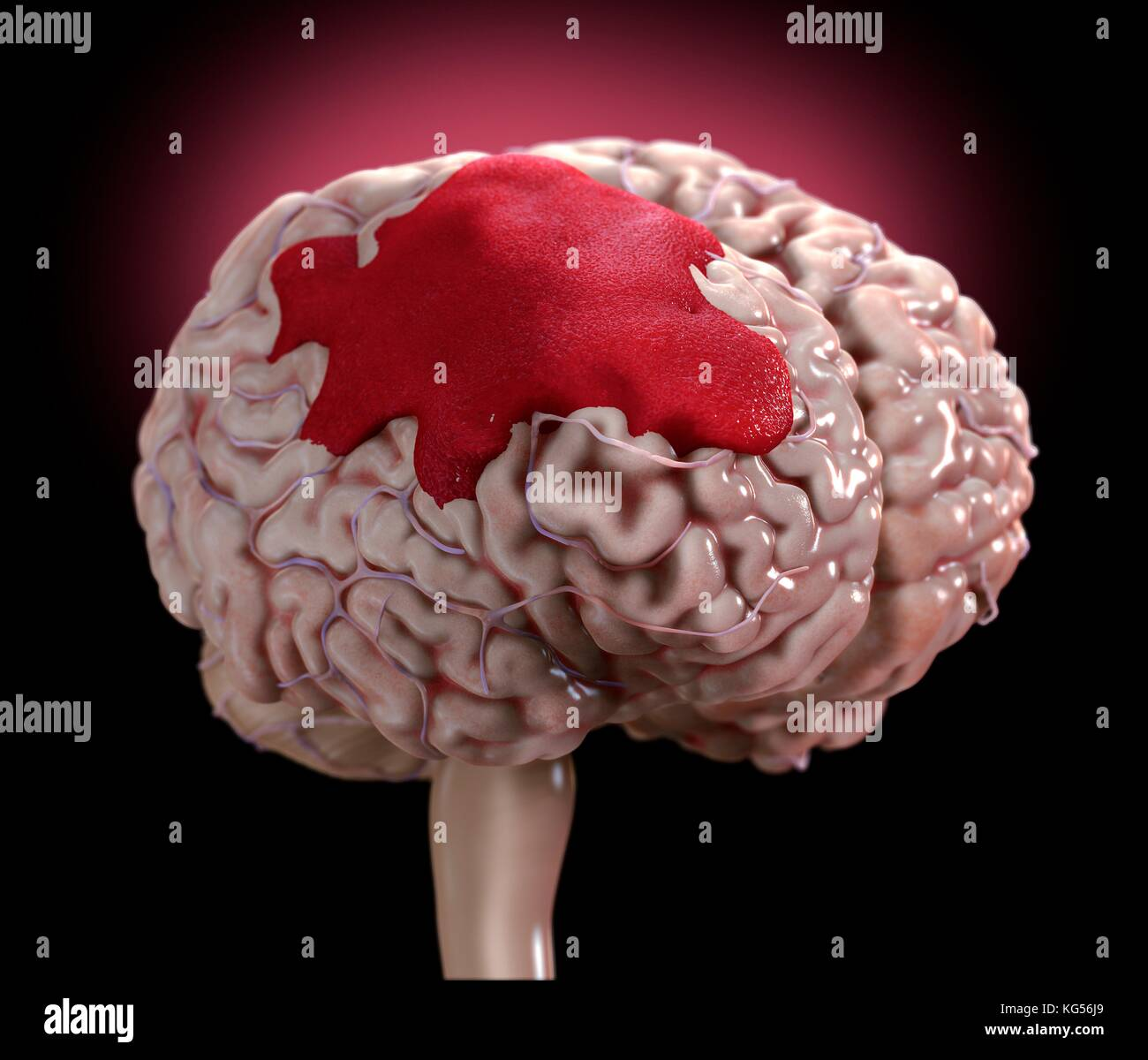 Brain Hemorrhage Anatomy Stock Photos & Brain Hemorrhage Anatomy ...