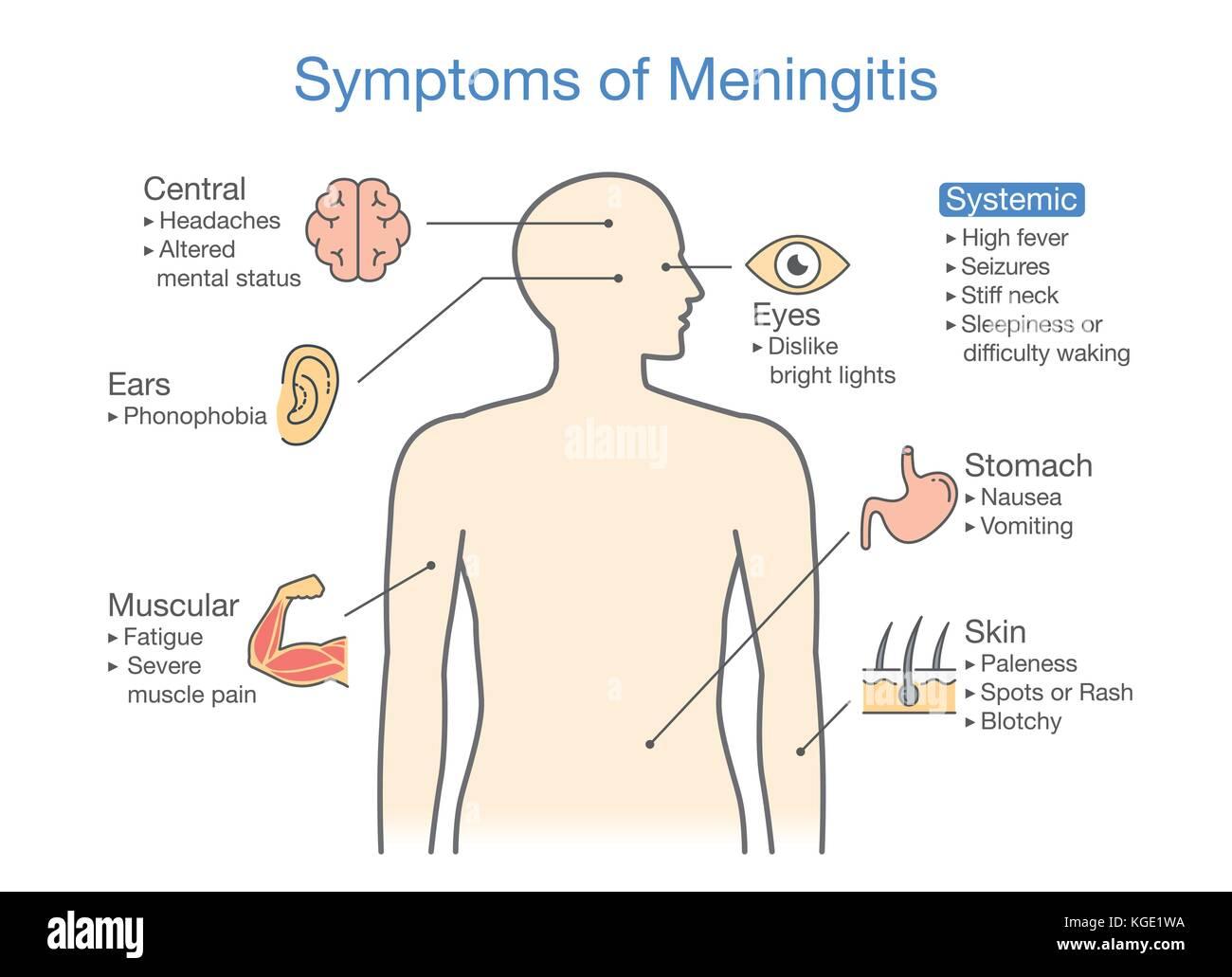 Diagram to showing patient symptoms with Meningitis disease. - Stock Image