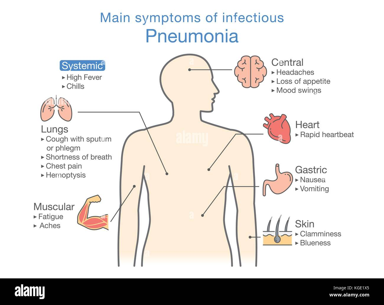 Diagram of main symptoms of infectious Pneumonia. Stock Vector
