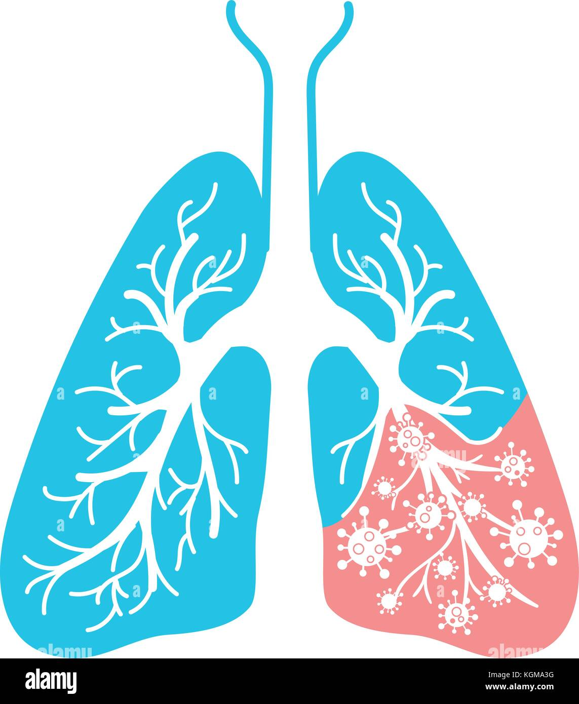 icon of lung disease, pneumonia, asthma, cancer in the form of lung anatomy and viruses, bacteria causing disease. - Stock Image