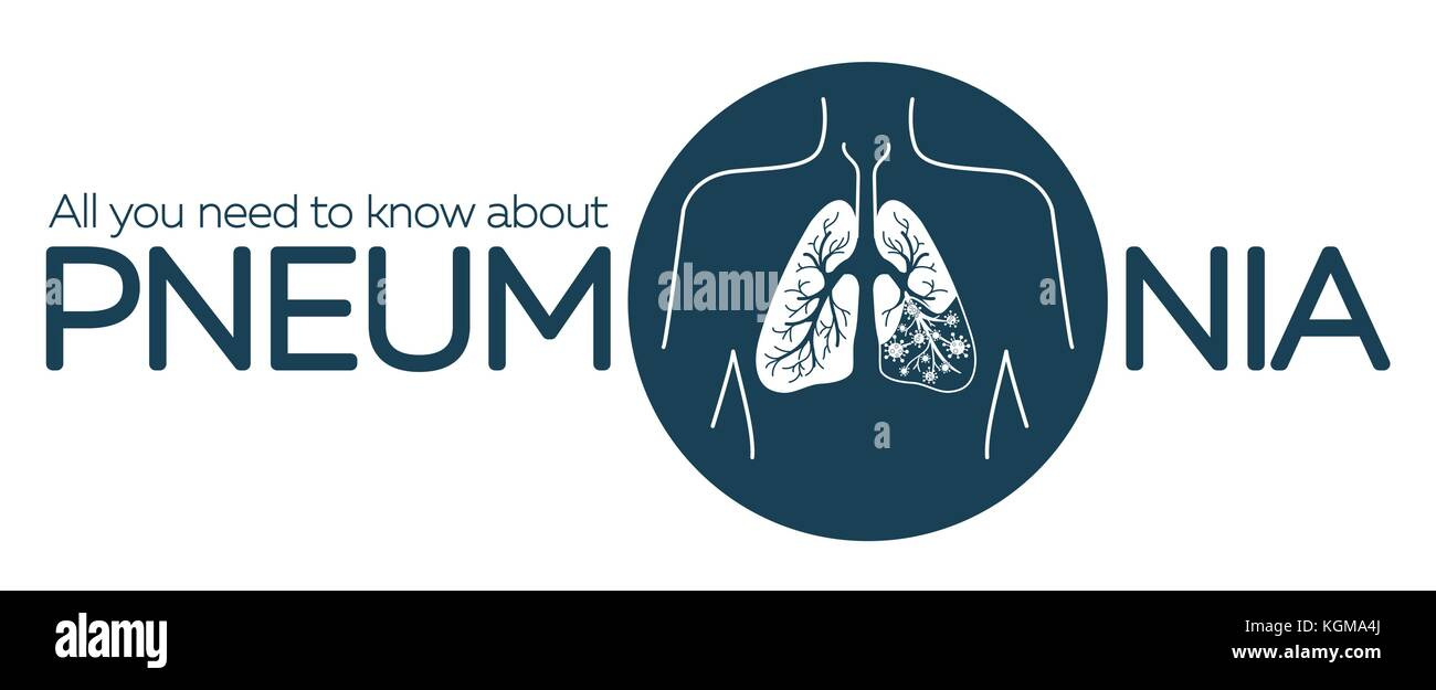 information banner about pneumonia in the form of anatomy of the lungs and bacteria causing disease. illustration - Stock Image