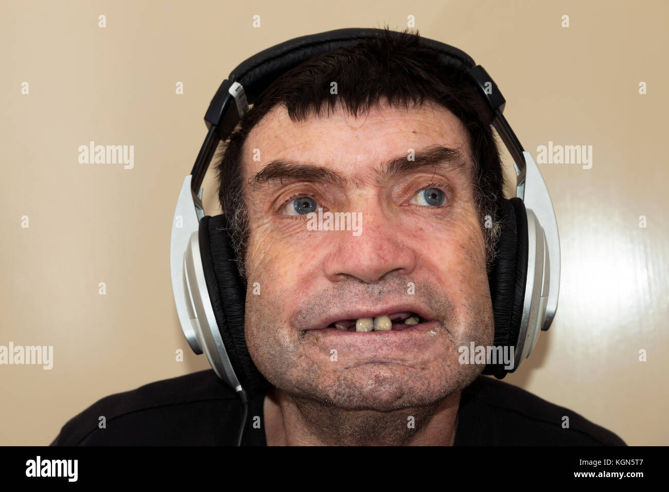 Man with learning difficulties listening to music - Stock Image
