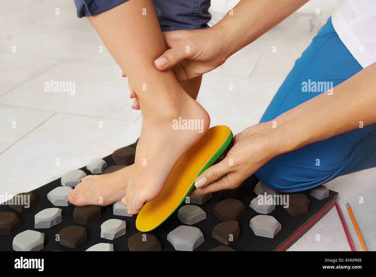 Orthopedic insoles. Fitting orthotic insoles. Flatfoot treatment. Podiatry clinic. - Stock Image