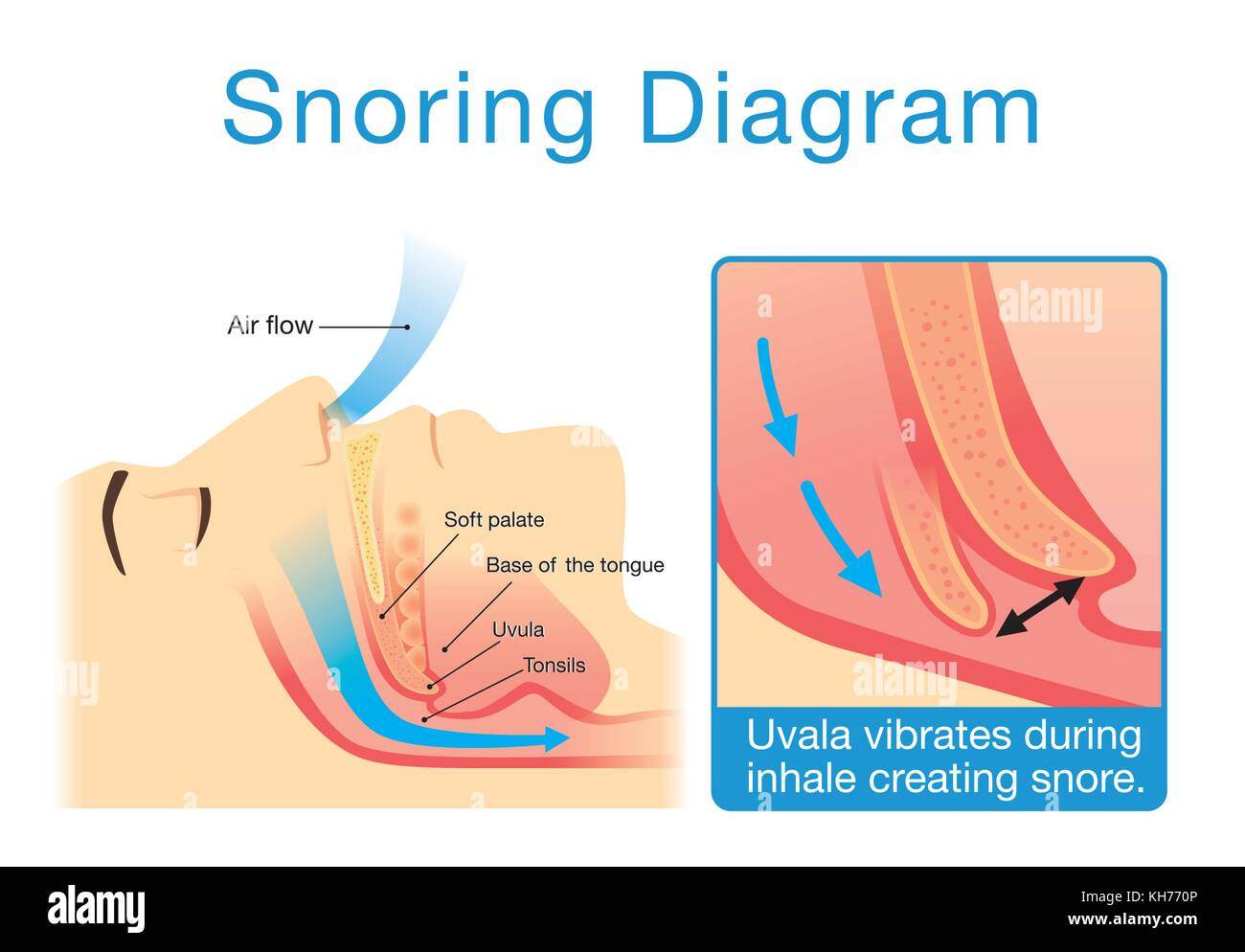 Anatomy Of Human Upper Airway While Sleeping With Snoring Stock