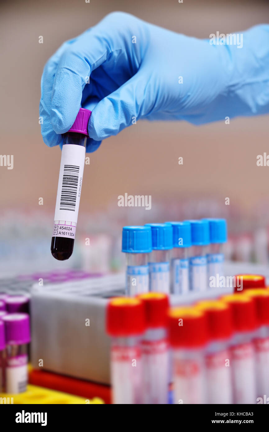 medical test tubes with blood tests - Stock Image
