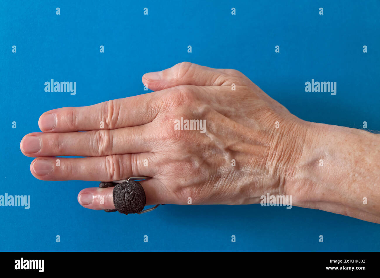 Finger splint on a little 'pinkie' finger after Dupuytren's Contracture corrective surgery to straighten - Stock Image