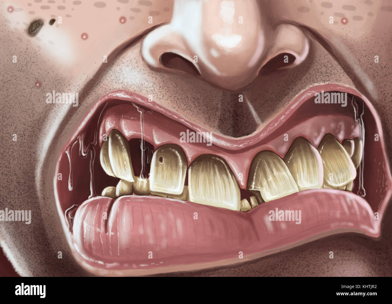 Digital illustration of close up of snarling mouth and rotten teeth. - Stock Image